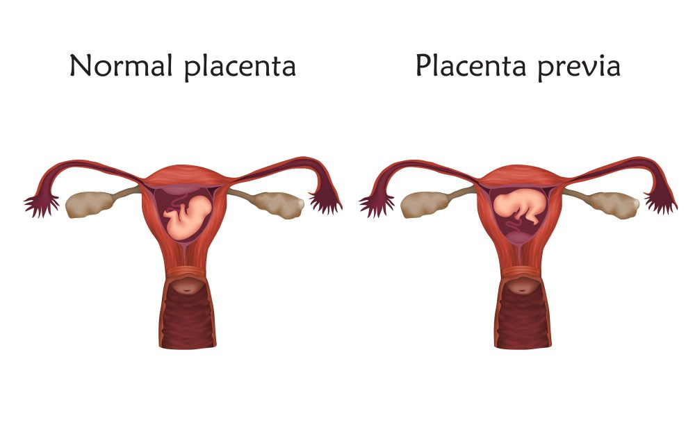 What Is Placenta Previa? - Miami Center of Excellence | Dr ...