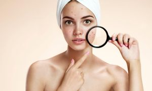 Teen girl with problem skin look at pimple with magnifying glass