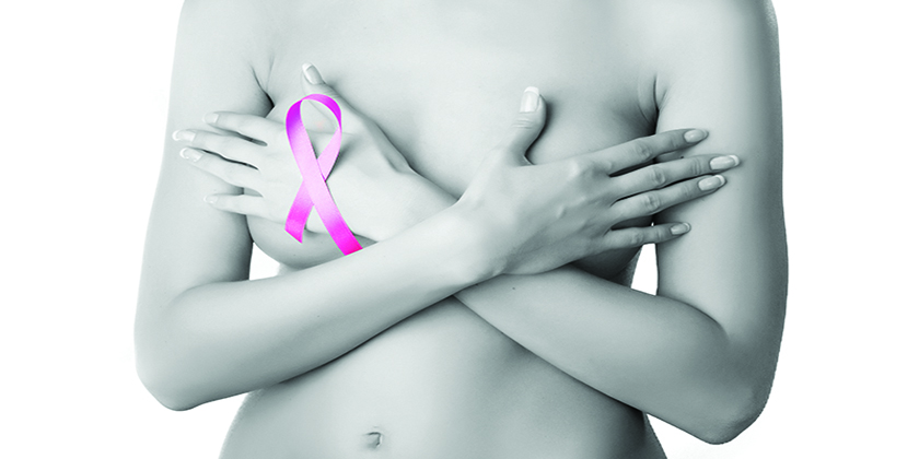 You should always perform a Breast Self-Exam | Miami Center of Excellence